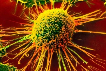 Риск развития рака снижается при лечении остеопороза
