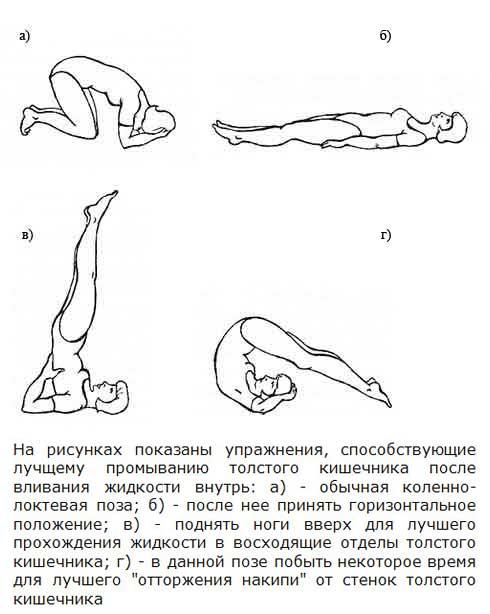 Упражнения после введения жидкости